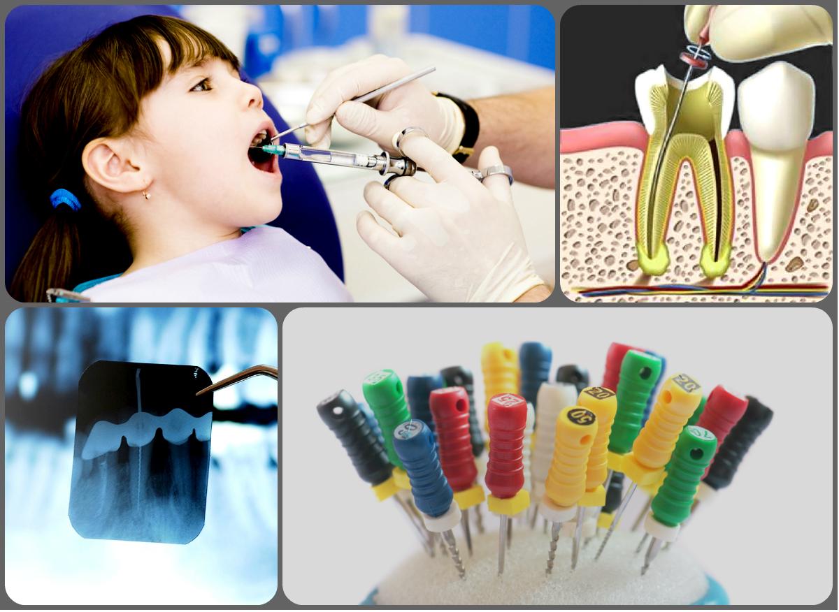 Endodontie tratarea nervului dentar