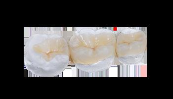 protetica dentara ESdent