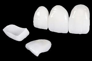 Esdent fatete dentare