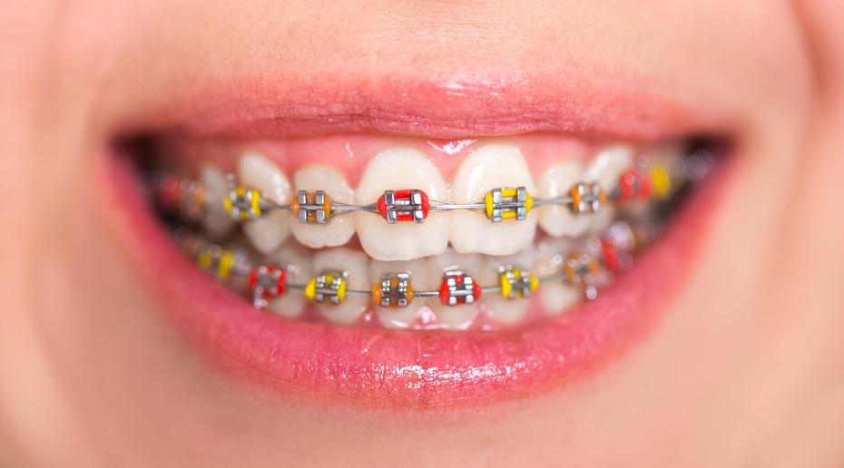 aparat dentar metalic esdent