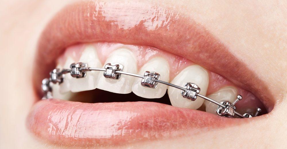 servicii-aparate-dentare-adulti-1000x658