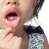 copii la stomatolog - esdent brasov