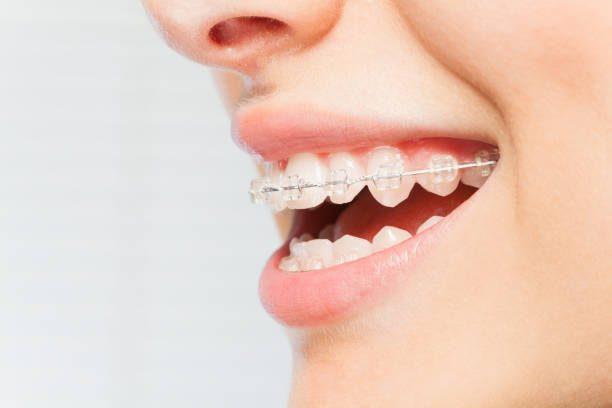 aparat-dentar-damon