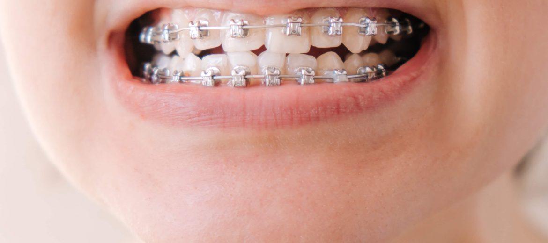 Vizita copiilor la medicul ortodont